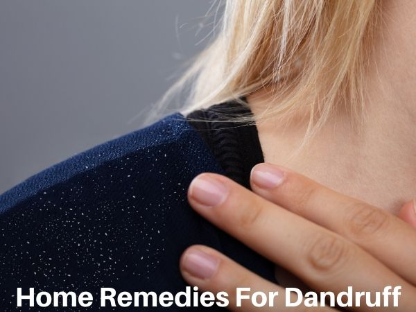 Natural Home Remedies for Dandruff