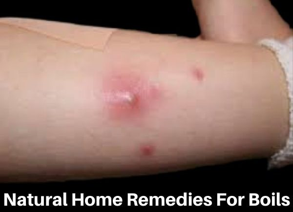 natural home remedies for boils