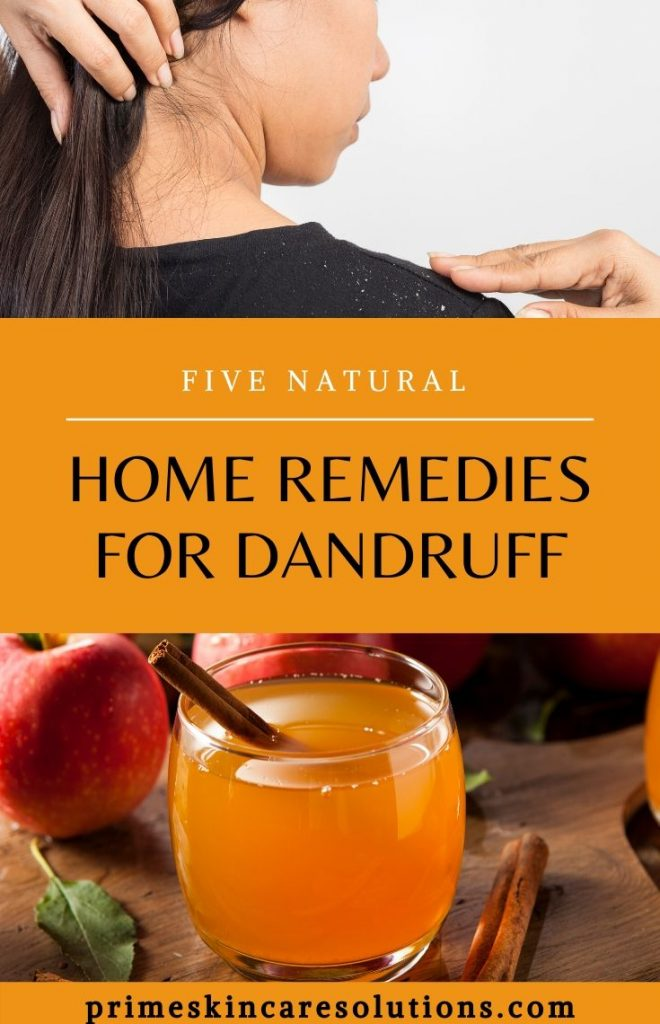 Natural home remedies for dandruff with recipes