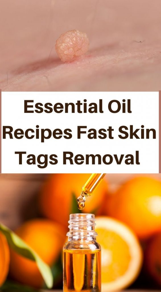 Essential Oils Recipes For fast Skin Tags Removal