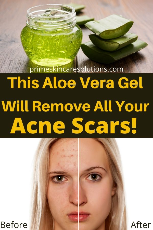 This Aloe Vera Gel will remove all your acne scars